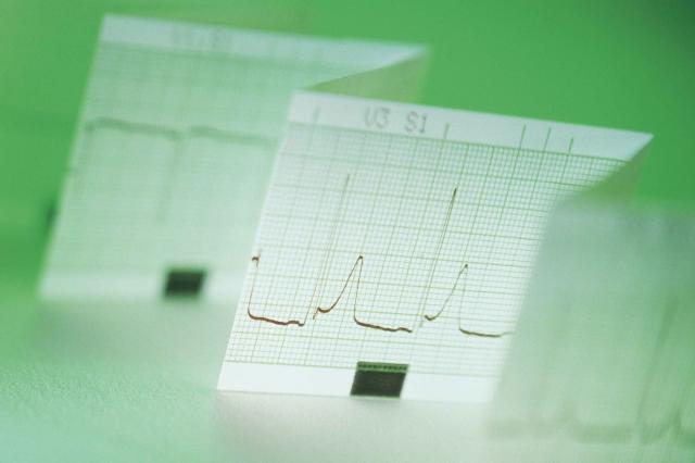 Printout of electrocardiogram
