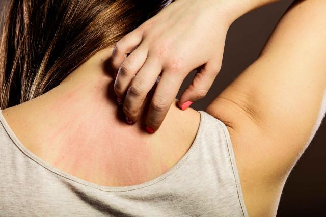 Woman scratching her back closeup