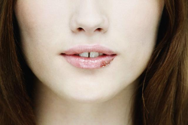 Young Woman with Cold Sore