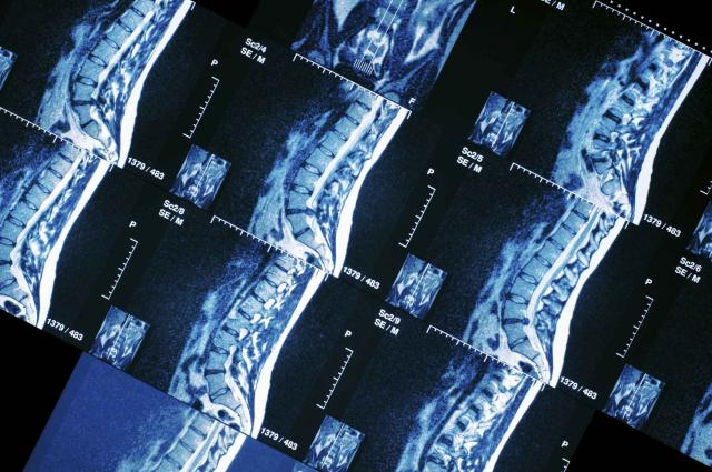 MRI sections of human spine